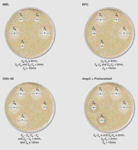 Carba Plus D73C (5x 50 Bl.) Zum Nachweis von Carbapenemasen (CPE) inkl. OXA-48